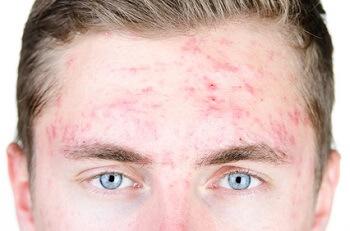 Les huiles essentielles contre l'acné, un traitement naturel